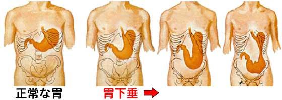 に 胃下垂 は 治す